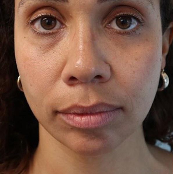 Chin Filler Treatment V1
