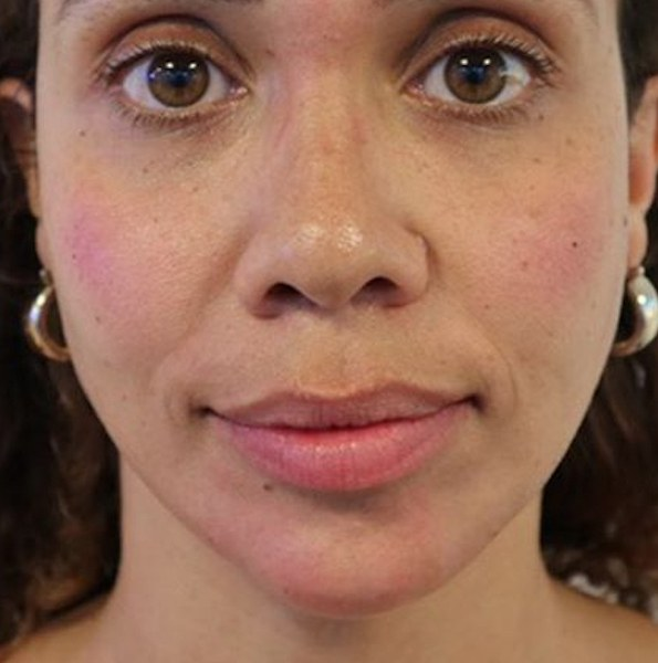 Chin Filler Treatment V2