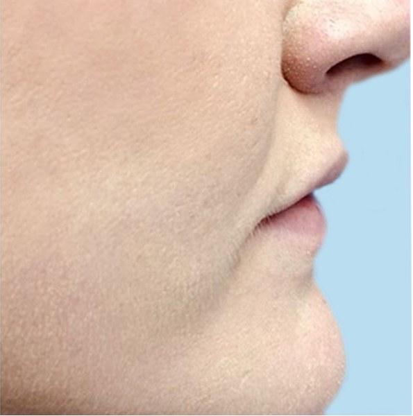lip enhancement _ volume v1