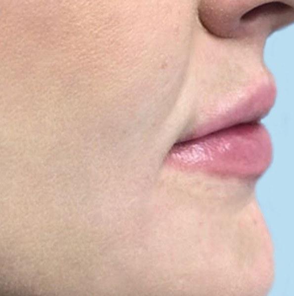 lip enhancement _ volume v2