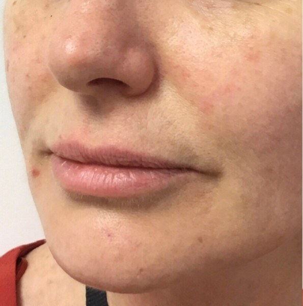 lip enhancement example version 1