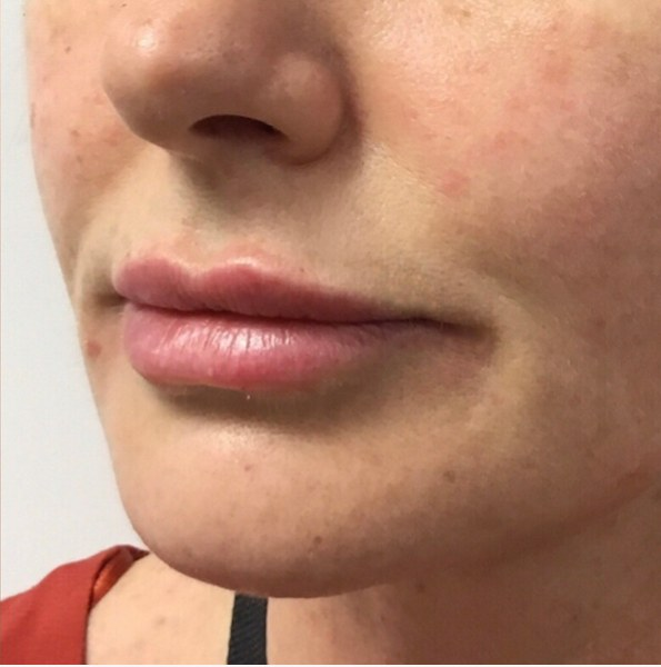 lip enhancement example version 2