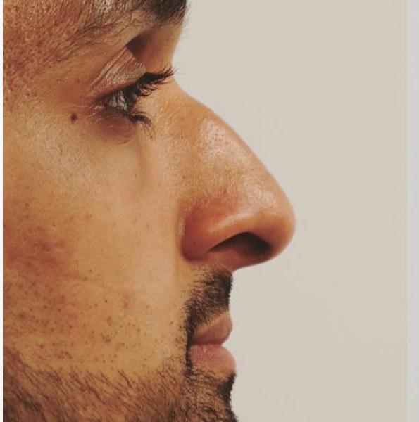 nose bump treatment 1