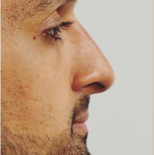 nose bump treatment 2