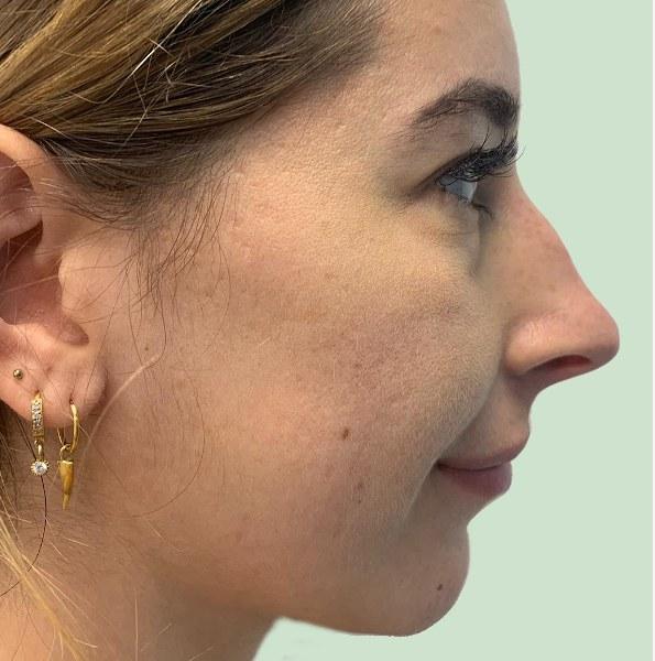 nose reshaping V1