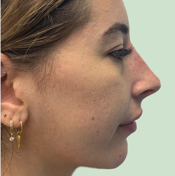 nose reshaping V2