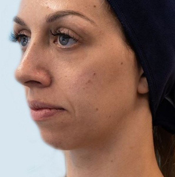 Chin filler treatment v7