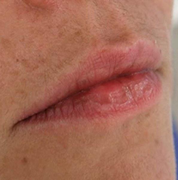 Lip Filler version 1