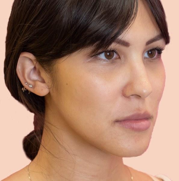 Lip enhancement V1 FULL FACE
