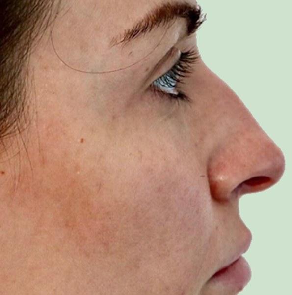 Nose bump filler correction V3