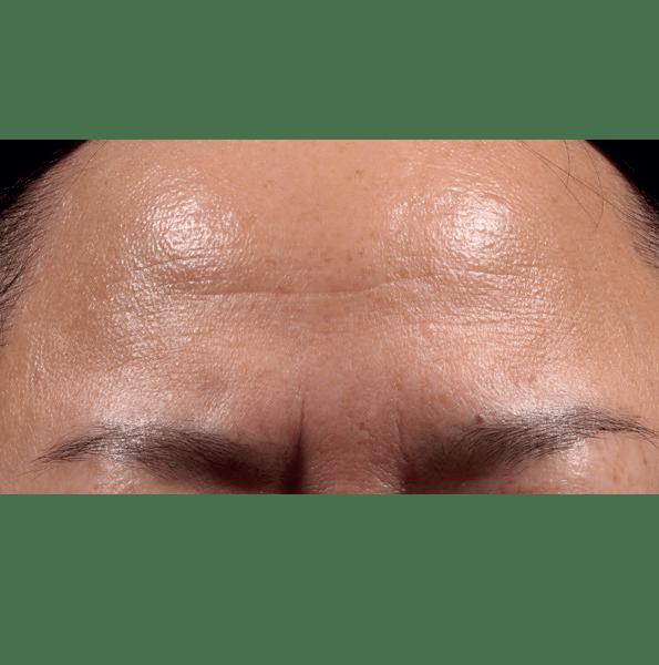 Retinol Peel Foreheadv2