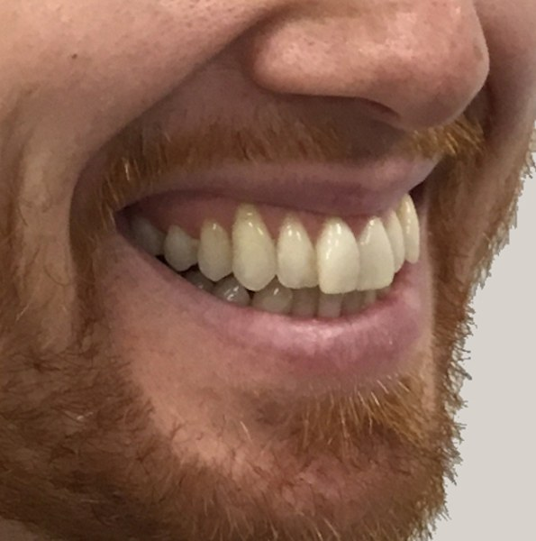 gums show when i smile