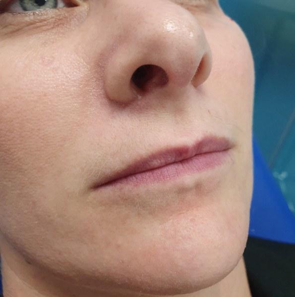 lip filler treatment version 1