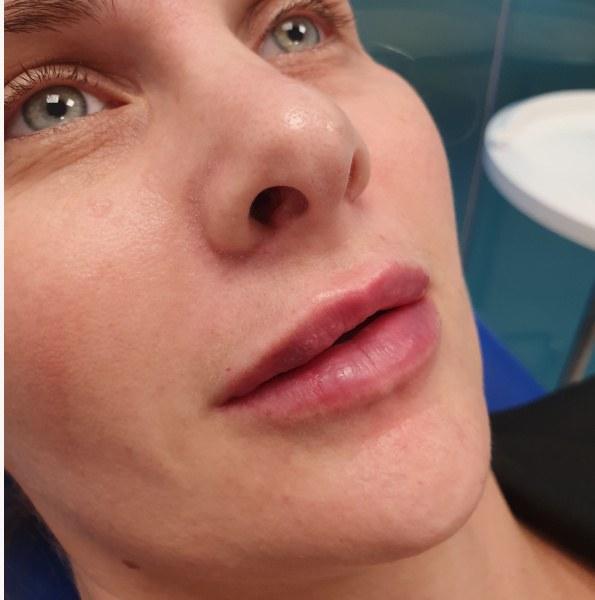 lipfiller results