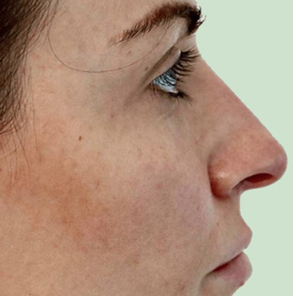 nose reshaping V4