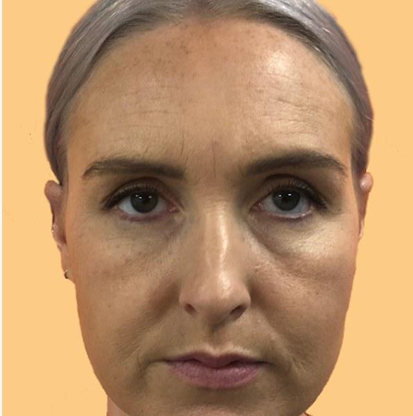 wrinkle reduction treatment forehead v3