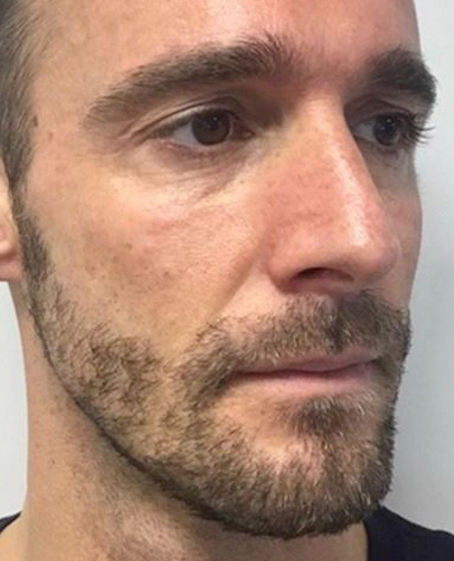 A male client before cheek filler