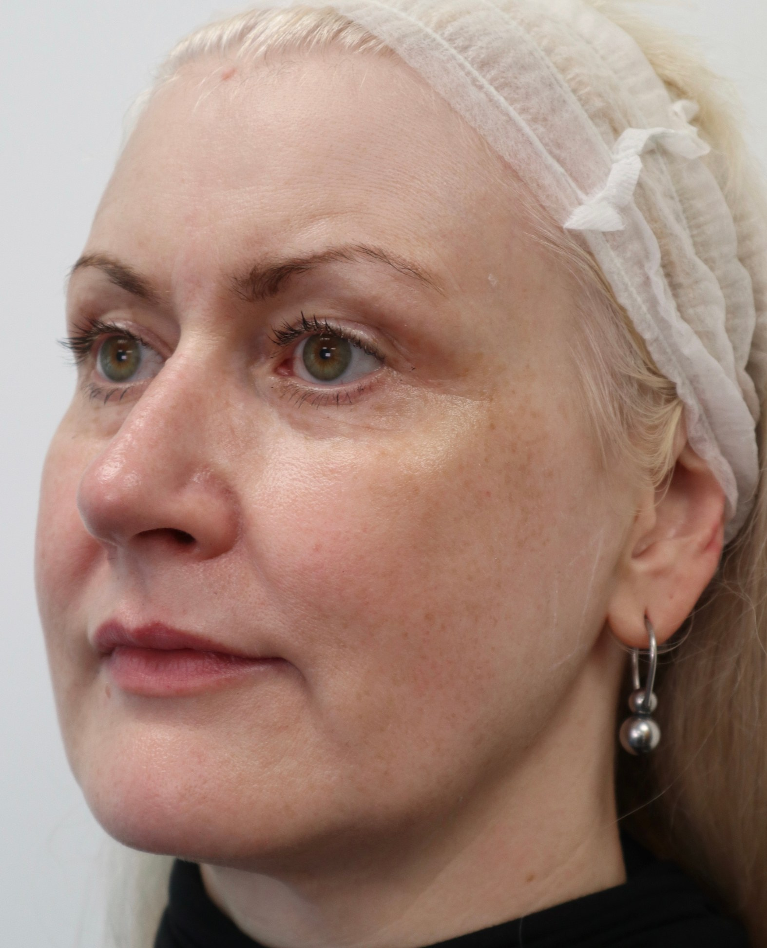 A client before treatment with Dr Jo Hackney