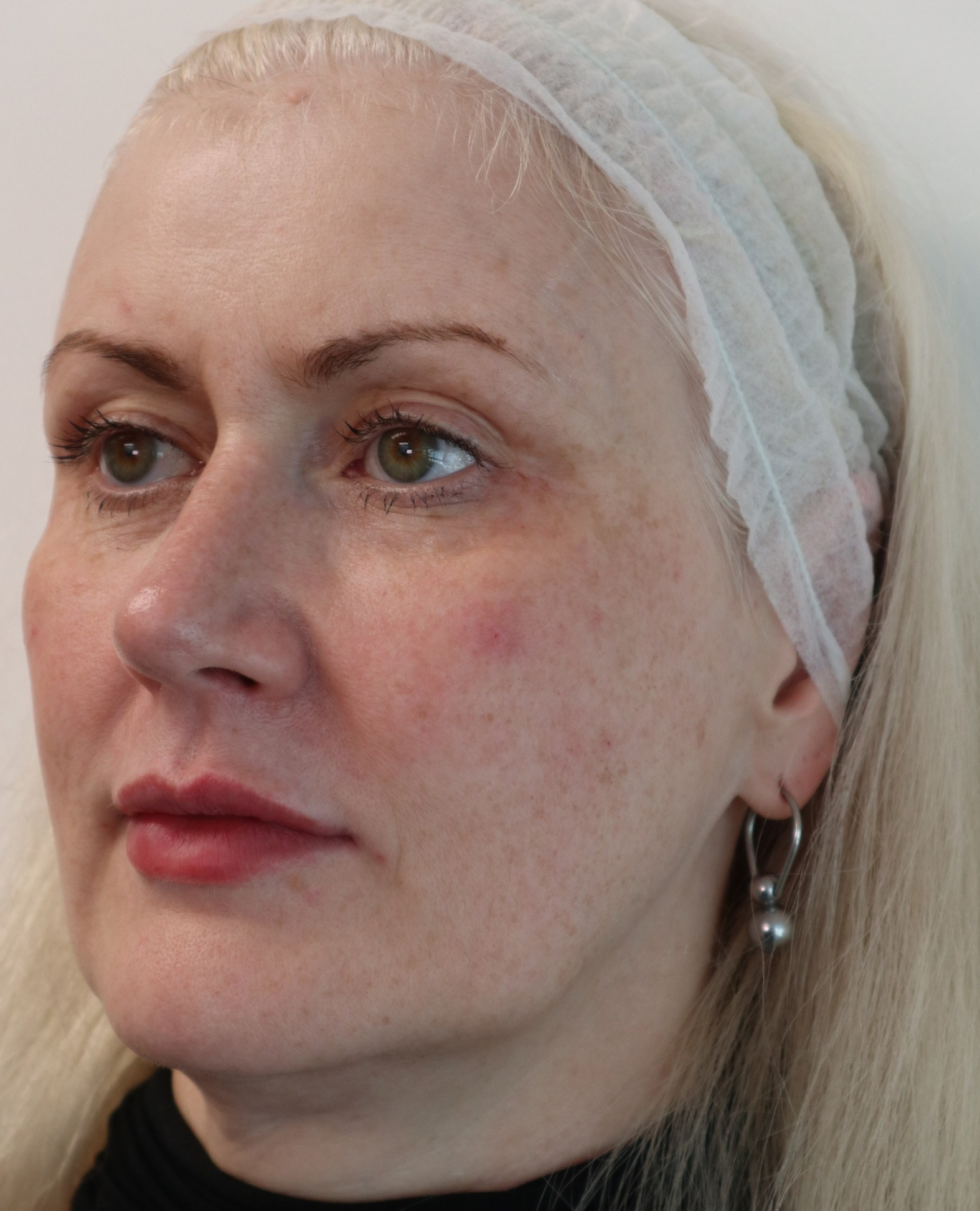 A client after treatment with Dr Jo Hackney