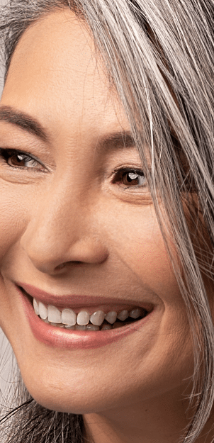 STORY aesthetic results - older woman smiling with amazing skin