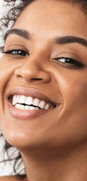 STORY aesthetic results - young woman smiling with great skin