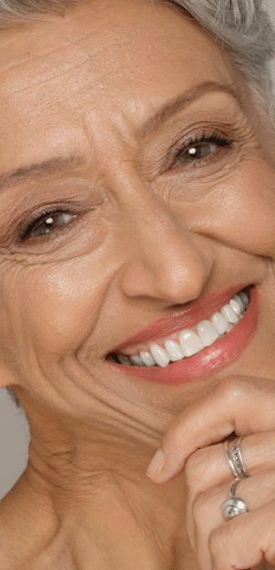 STORY aesthetic results - older woman smiling with great skin