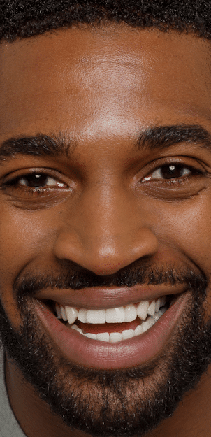 STORY aesthetic results - man smiling with great skin