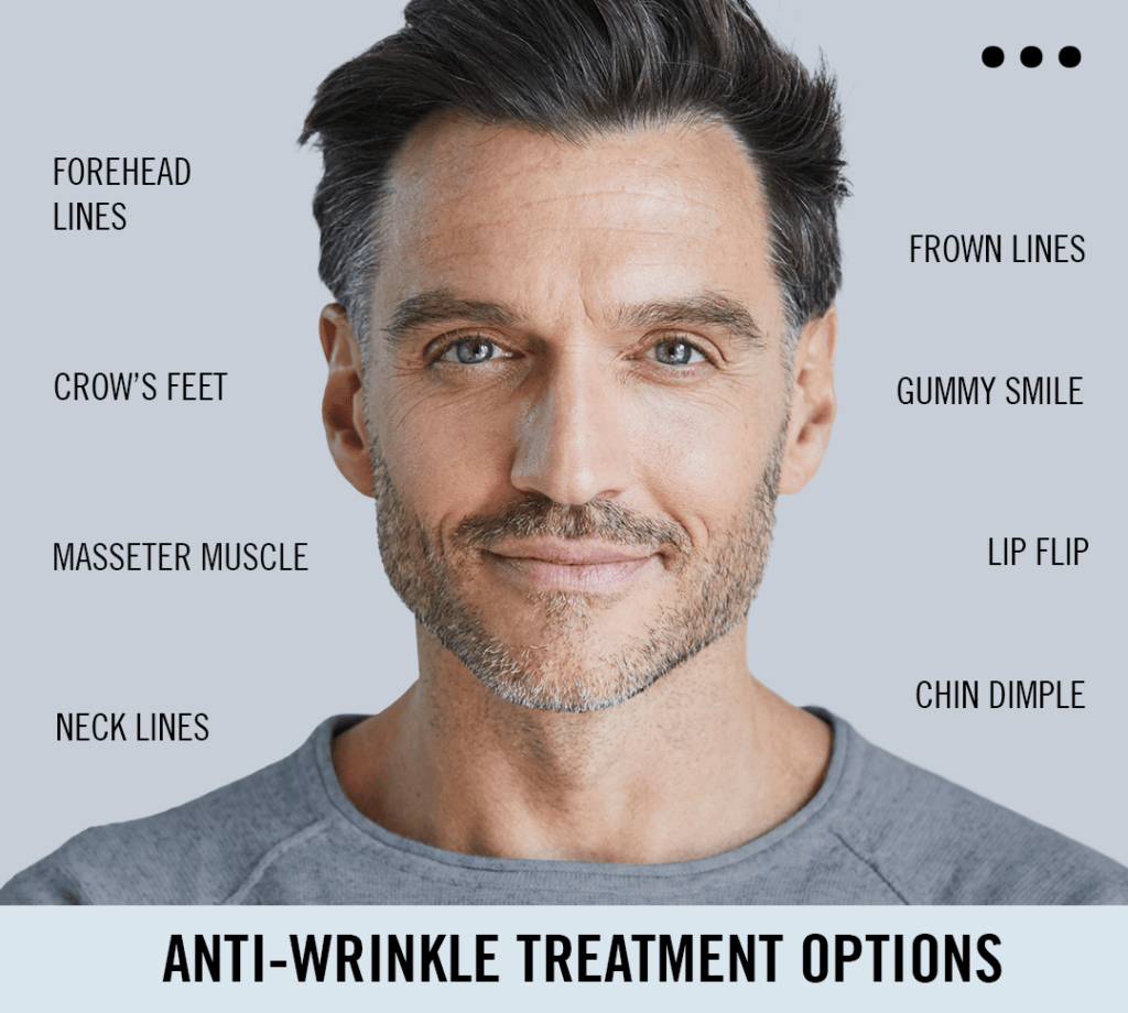 STORY CLINICS Anti-wrinke treatment injections forehead masseter lip flip crow's feet neck frown lines gummy smile chin dimple medical expert injector aesthetics london marylebone southwell
